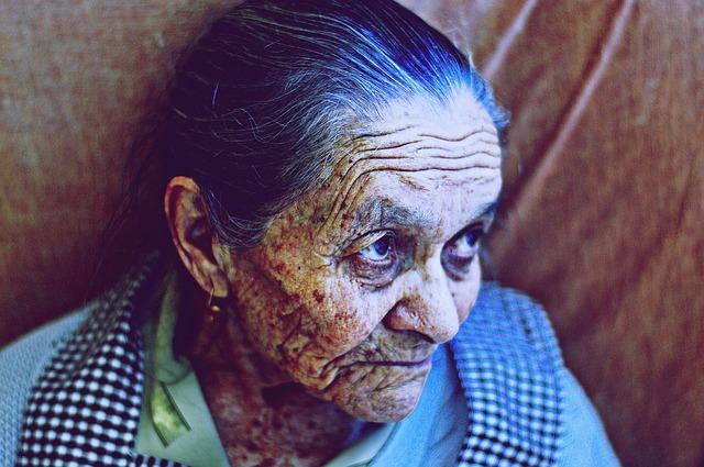Elderly wrinkle photo
